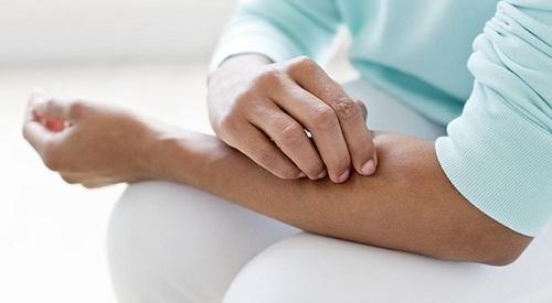 Что такое аллергия и как с ней бороться? изображение