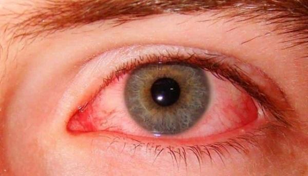 Что такое глазное давление и как его лечить? изображение