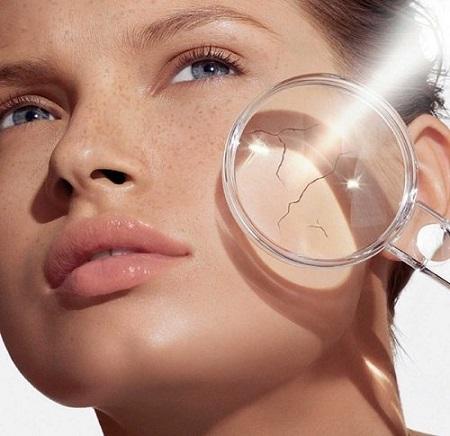 Сухость кожи, причины и лечение с НСП изображение