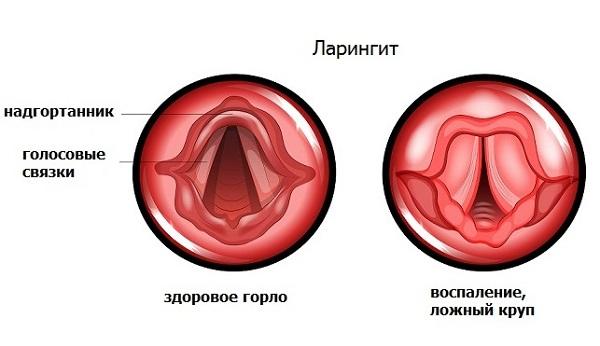 Симптомы ларингита изображение