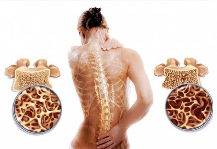 Что такое остеопороз изображение