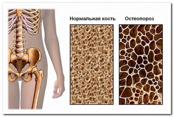 Причины и факторы риска остеопороза изображение