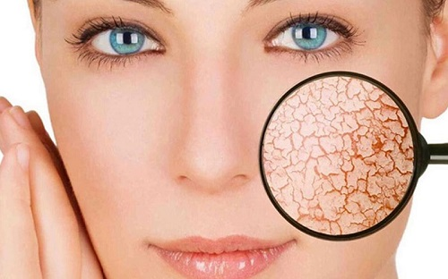 Акне, проблемная кожа, лечение с НСП изображение