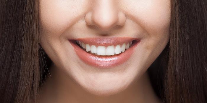 Как отбелить зубы в домашних условиях изображение